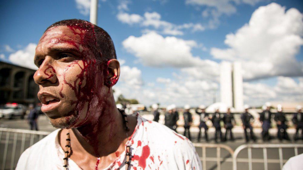 rapaz ferido Brasilia